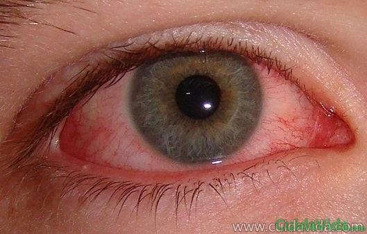 Los ojos rojos pueden señalar varias enfermedades