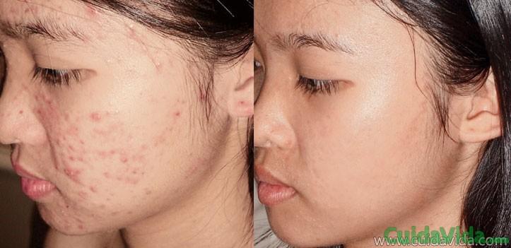 Como eliminar el acné en casa con lavados y frotis naturales