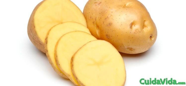 remedio casero aliviar dolor cabeza patata