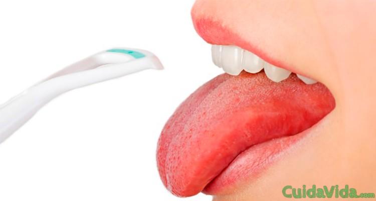 Causas de tener la lengua blanca