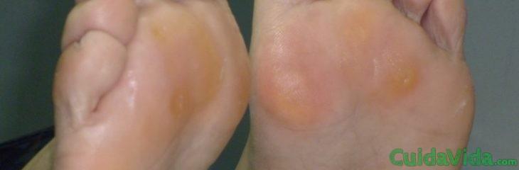 El hongo de la uña en el pie de la foto y el tratamiento