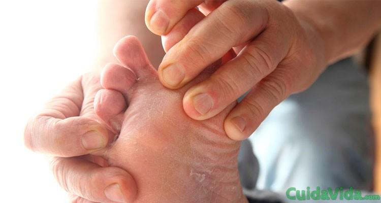 Cómo saber si padeces hongos en los pies